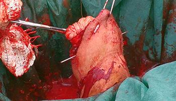 Aparato Urogenital en Rumiantes